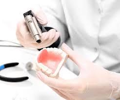 Зубной имплант харьков