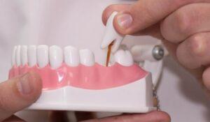 протез зуба харьков